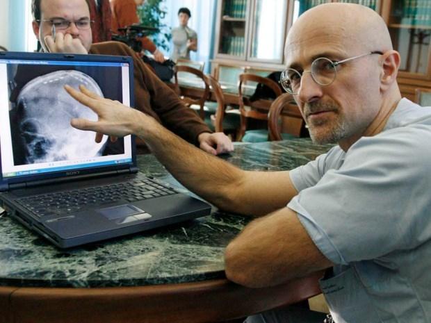 Dr Sergio Canavero operasyon ile ilgili bilgi verecek
