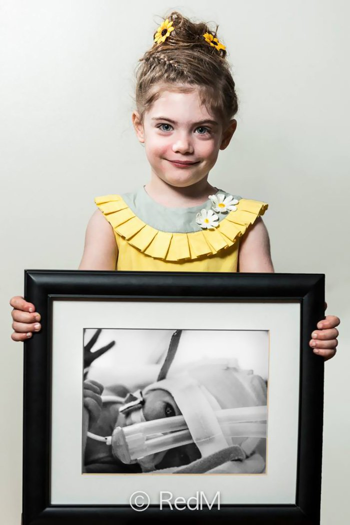 2 Prematüre doğan Margot